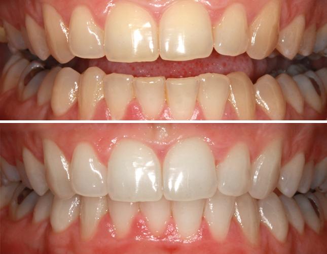 Rezultati izbjeljivanje zubi #2