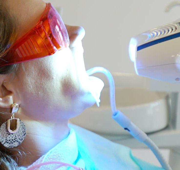 Sbiancamento Dentale Croazia - Centro Dentale Štimac