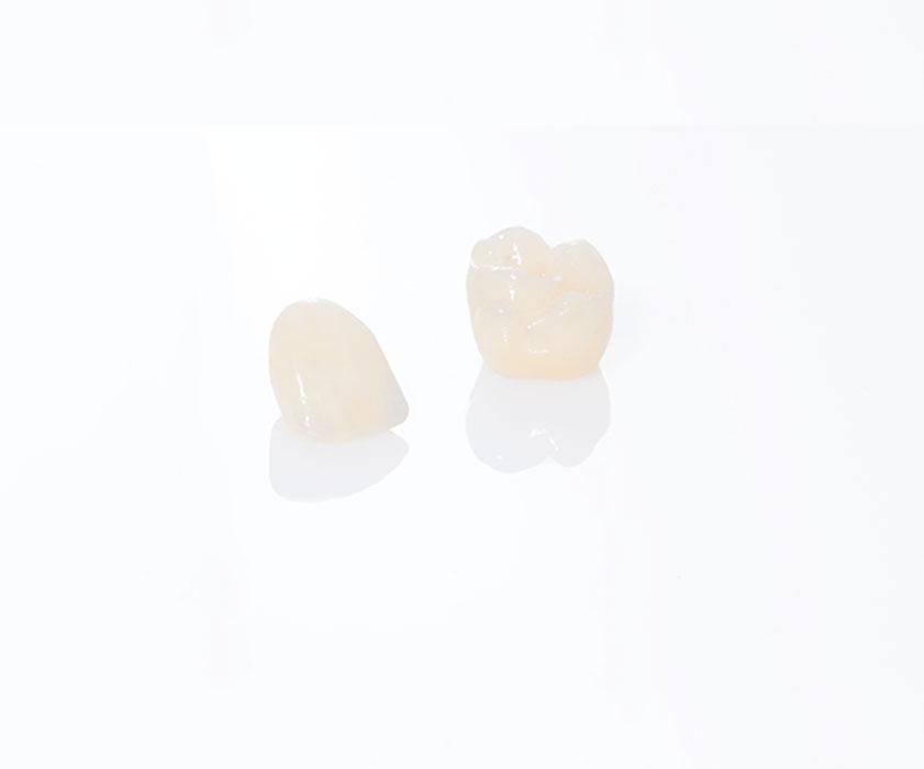 Corone Dentali Croazia - Centro Dentale Štimac