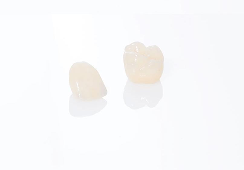 L'odontoiatria conservativa offre servizi per ogni età