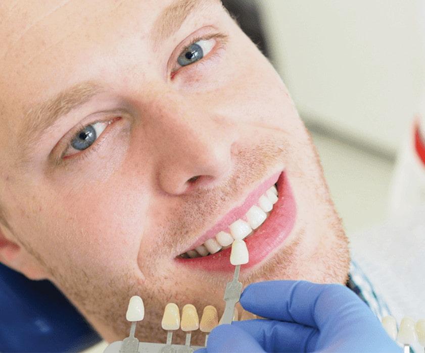 Odontoiatria Potesica Faccette Dentali