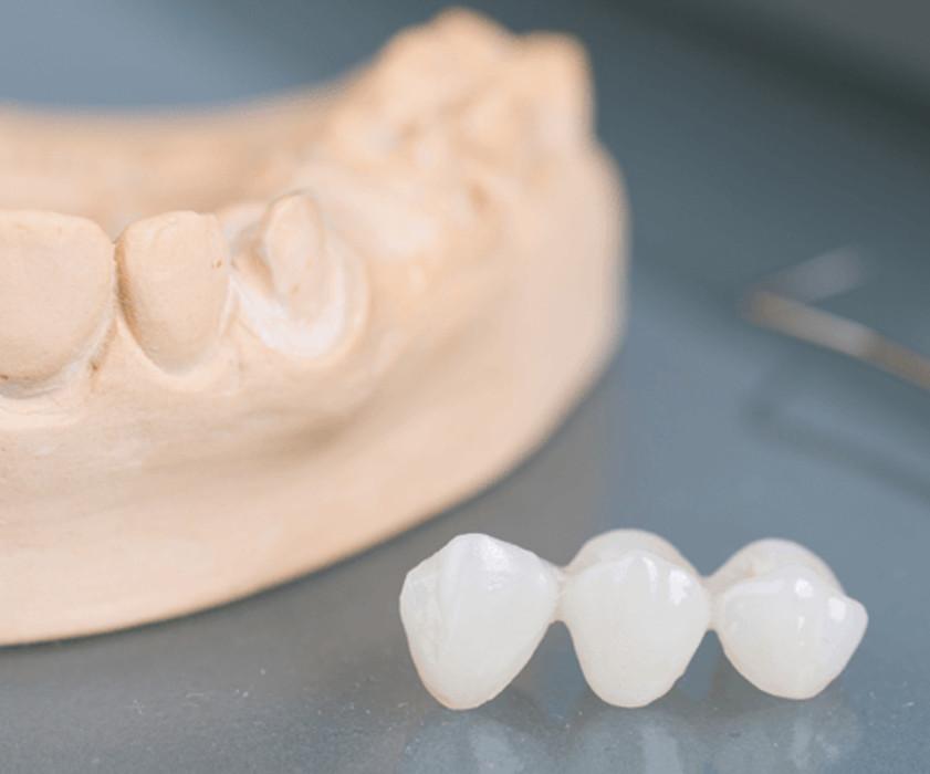 Odontoiatria Potesica Ponti Dentali