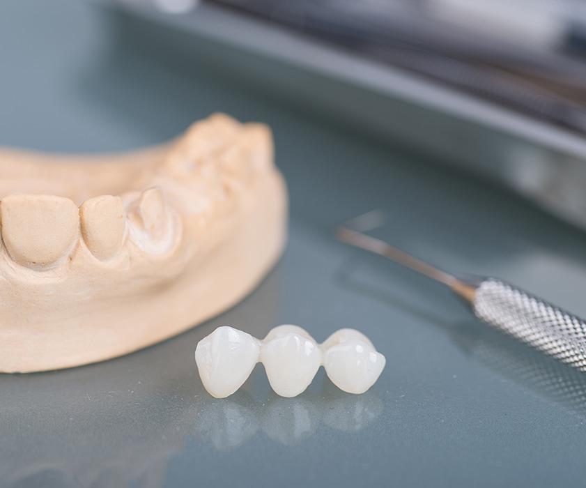 Ponti Dentali Croazia - Centro Dentale Štimac