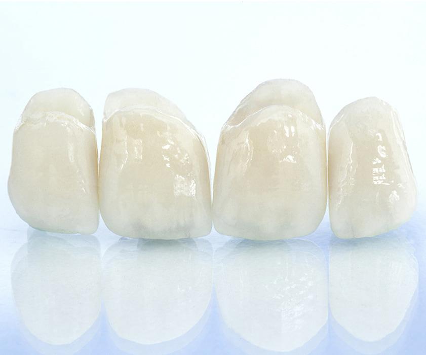 Tipi di corone dentali Zagabria